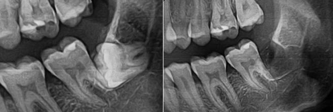 удаление коренных зубов