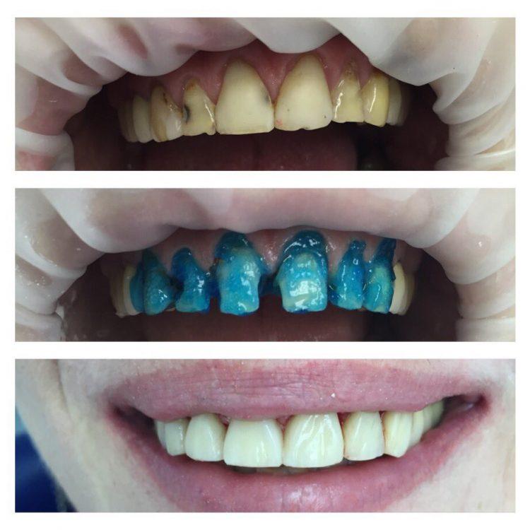 отбеливания зубов фото