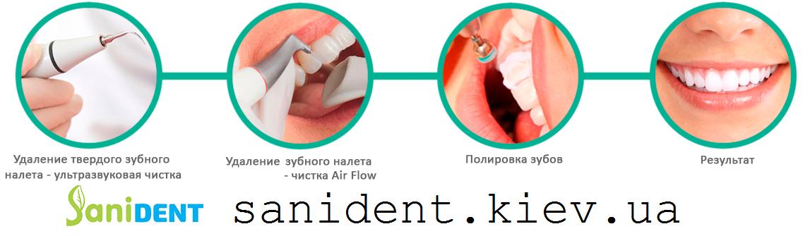 снятие зубных отложений киев