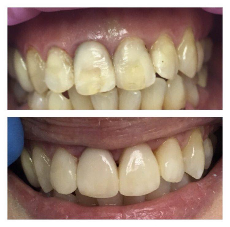 Реставрация зубов зубы в киеве