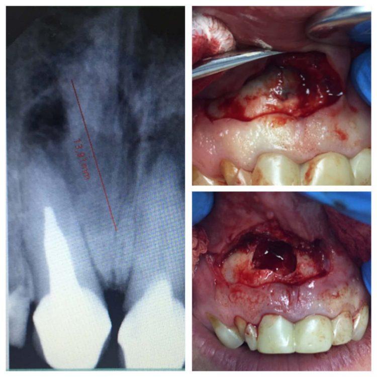 резекция корня зуба киев